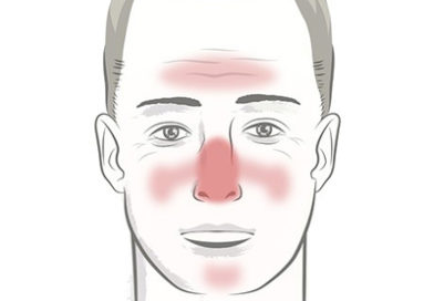 Rosacea – Understanding the Condition